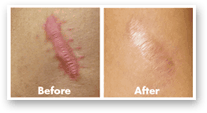 how well scarinex scar removal treatment works
